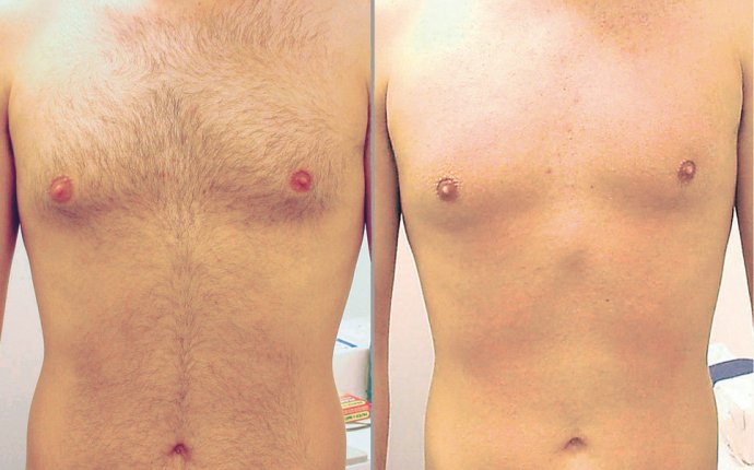 Body Hair Removal Philadelphia - Back hair removal for men