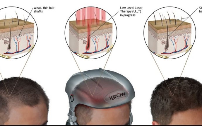 Hair Regrowth, Regrow Hair at Home with iGrow, Red Light Therapy