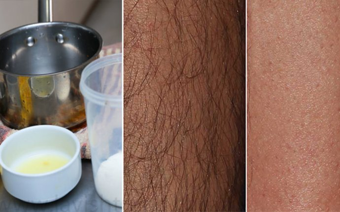How To Remove Unwanted Hair Naturally At Home Without Using Cream
