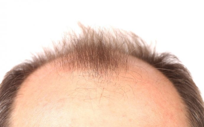 How To Stop Hair Loss | LloydsPharmacy Online Doctor UK