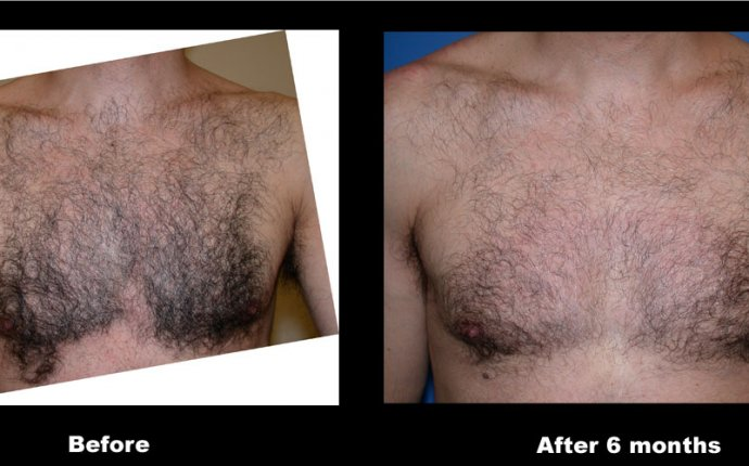 Laser Hair Removal – A Permanent Solution to Unwanted Hair