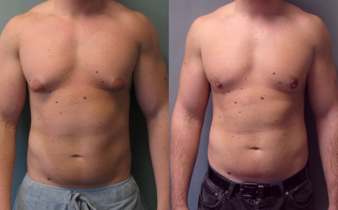 Male Breast Reduction, also known as Gynecomastia, is often the