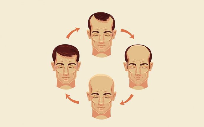 What You Need to Know About Hair Loss | Men s Health