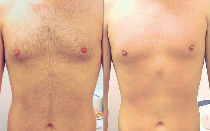 How to Lose Body Hair for Mens?