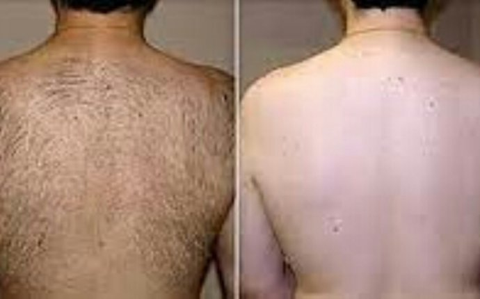 Hair Removal Cream on Chest for Mens