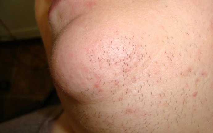 Facial Hair Permanent Removal for Mens