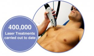 laser hair removal men