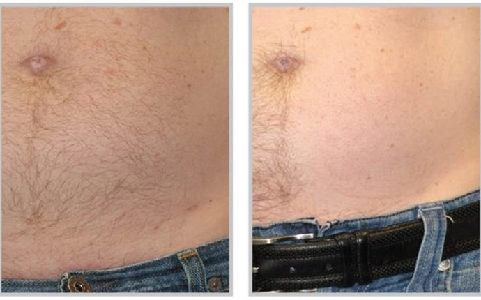 Body Laser Hair Removal for Mens