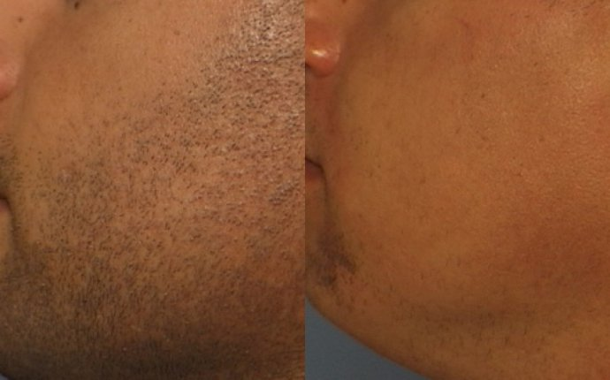Permanent Hair Removal that Works for Mens
