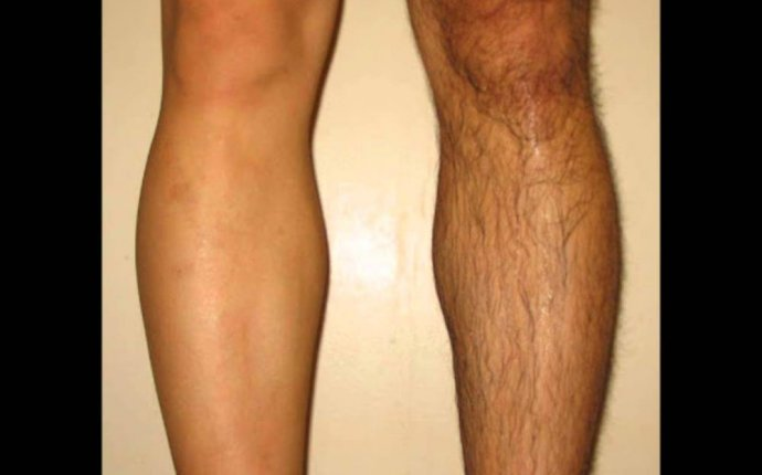 Permanent Hair Removal for Legs for Mens