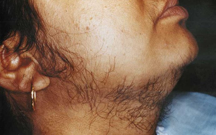 Permanent Hair Removal Remedies for Mens